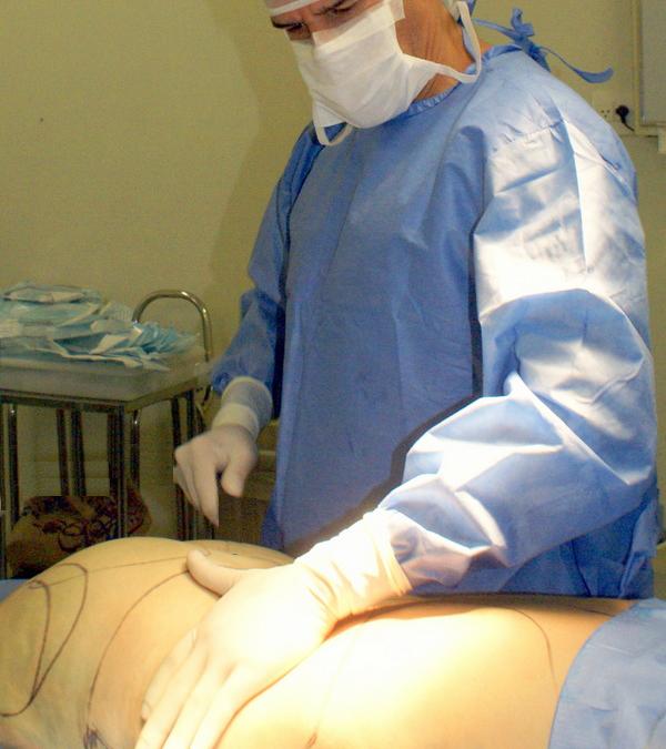 Cirurgia Plástica Pós-Obesidade: Como é o procedimento