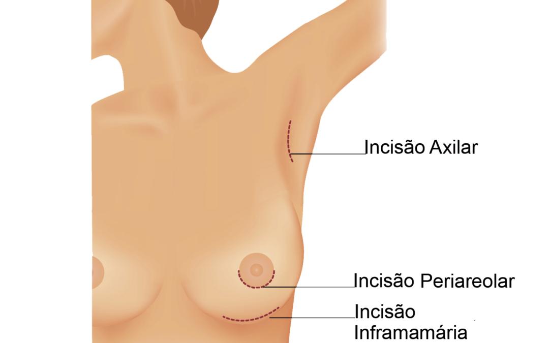 Mamoplastia de Aumento: Como é a Cirurgia de Implante de Silicone