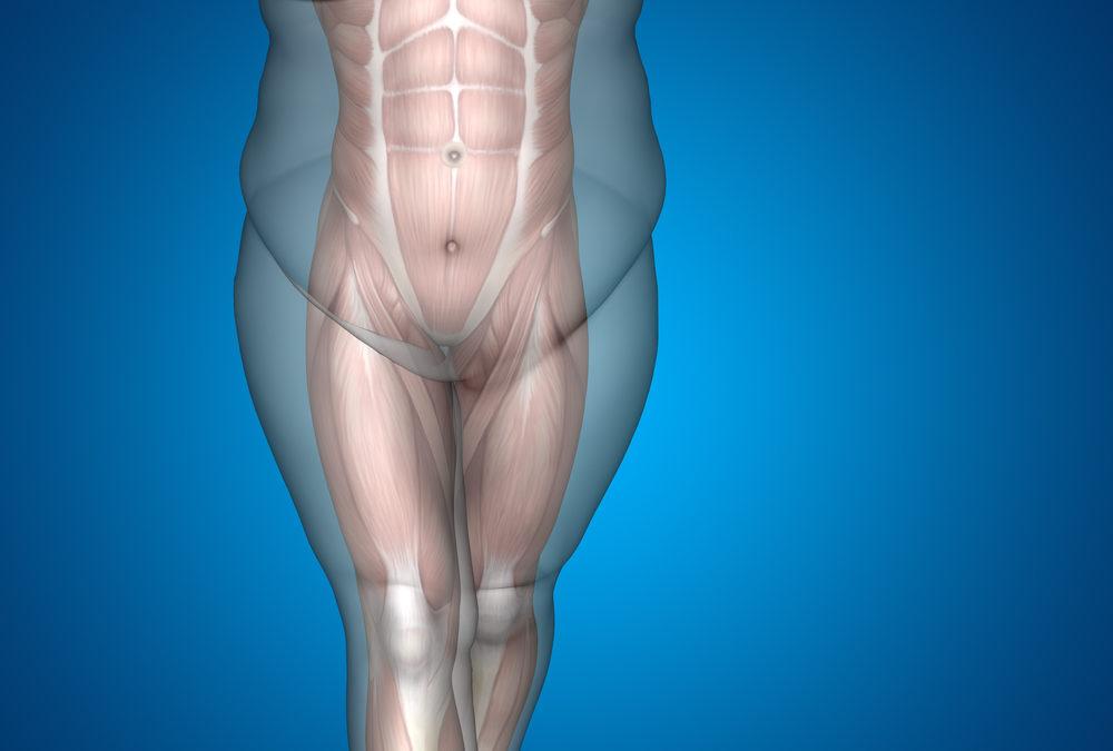 Cirurgia Plástica Pós-Obesidade: Como é a Recuperação