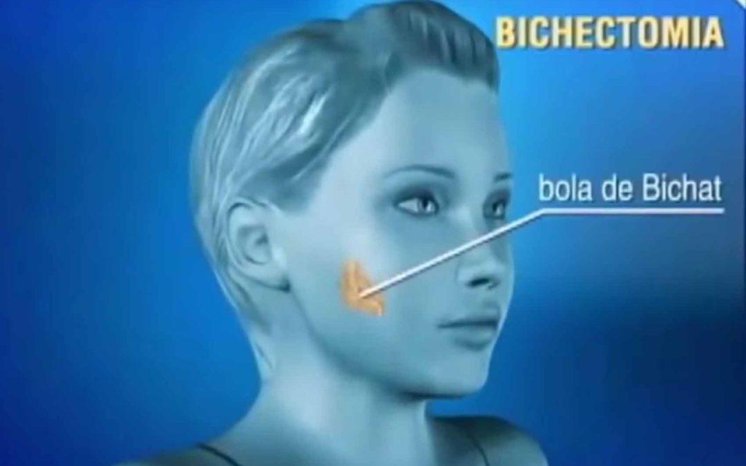 Bichectomia – A cirurgia de redução das bochechas afina a face e define melhor as maças do rosto